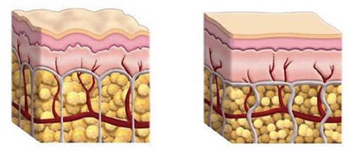 胶原蛋白填充