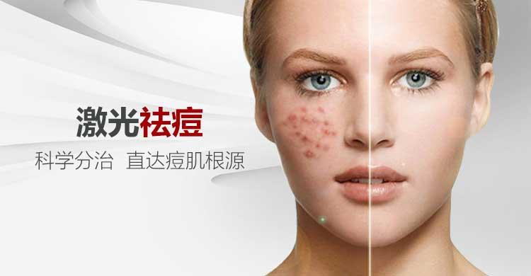 不用药物的祛痘方法_激光祛痘-上海时光整形外科医院【官网】